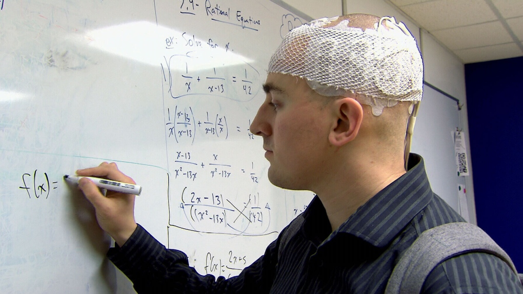 Cap Like Device Offers New Hope In Fight Against Brain Cancer That