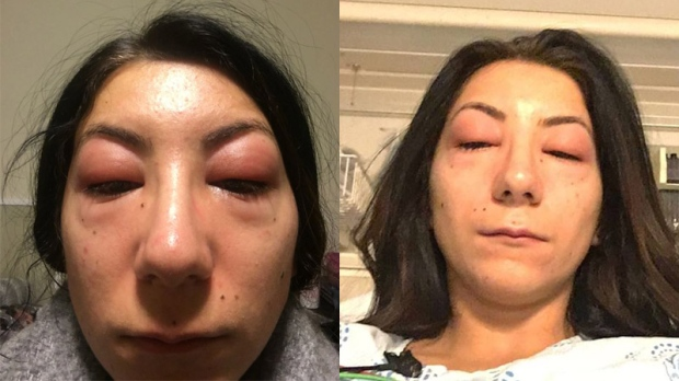 1f0a3e3f656 'It's so gross': Woman's eyes severely swollen after eyelash-gluing session