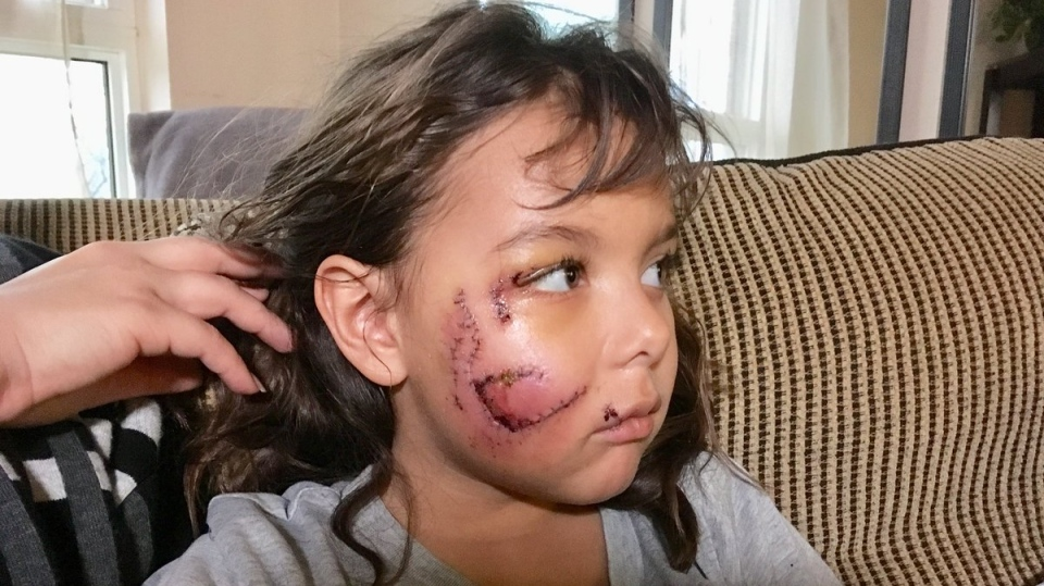 Windsor girl recovering after getting attacked by a dog, Jan. 11, 2018. (Stefanie Masotti / CTV Windsor)