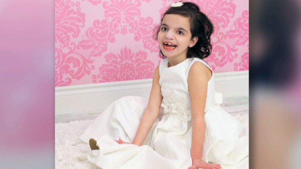Ava Calandra is overcoming some major obstacles despite a rare genetic condition that causes severe seizures and means she is non-verbal.