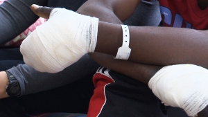 A 36-year-old man from the West African nation of Togo suffered severe frostbit after crossing the Canada-U.S. border in -28 C conditions near Emerson, Man.