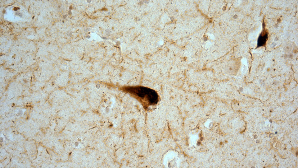 Neurons in the hippocampus showing tau protein clumps in a person who had CTE-ALS.