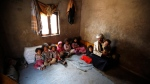 In this Monday, March 28, 2016 photo, Faisal Ahmed, whose infant son, Udai Faisal, died of severe acute malnutrition, sits with his nine remaining children at his house in Hazyaz village on the southern outskirts of Sanaa, Yemen. (THE CANADIAN PRESS/AP-Hani Mohammed)