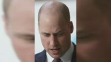 Trending: Embracing baldness