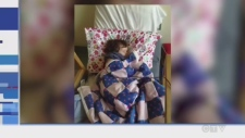 Evelyn has severe chronic auto-immune neutropenia