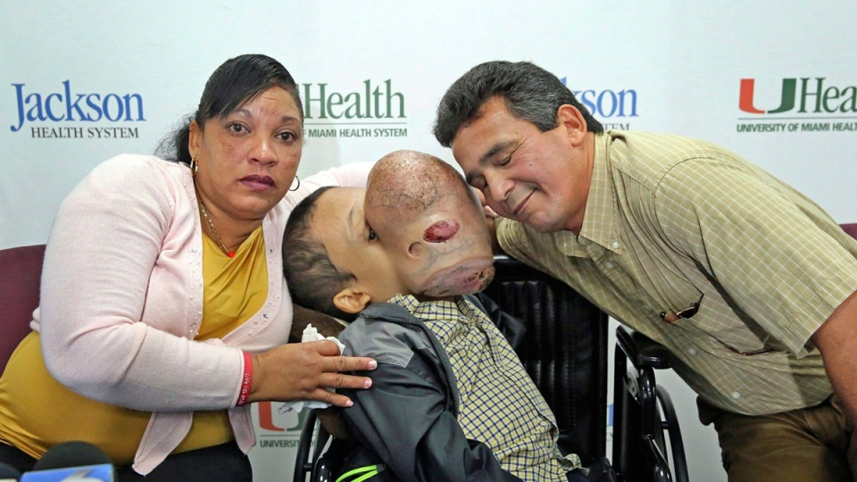 Cuban boy dies after surgery to remove basketball-sized facial tumour