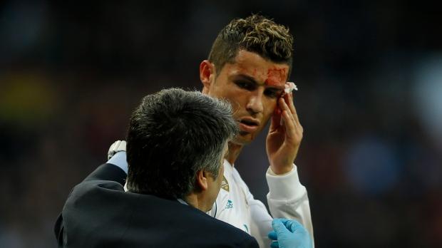 cristiano ronaldo has stitches for face cut in la liga ctv news
