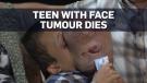 tumour