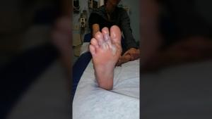 Hookworm feet