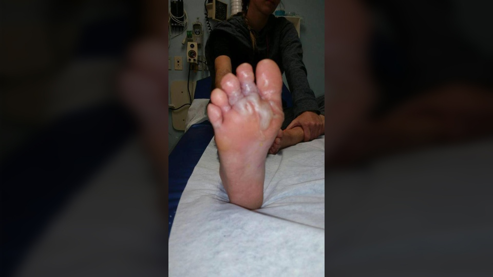 Katie Stephens' feet started swelling a few days after she returned home from vacation. (Katie Stephens/Facebook)