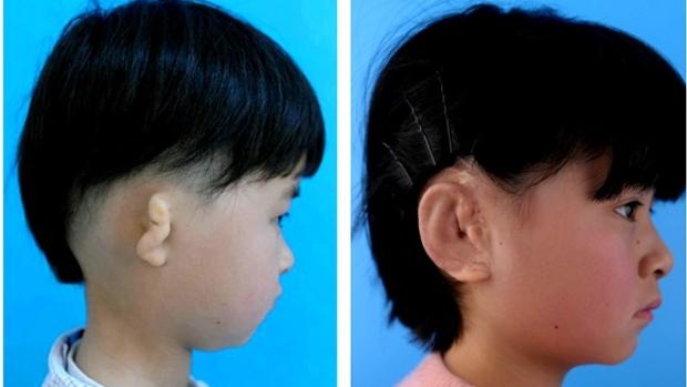 Ear transplant