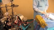 Kidney transplant device