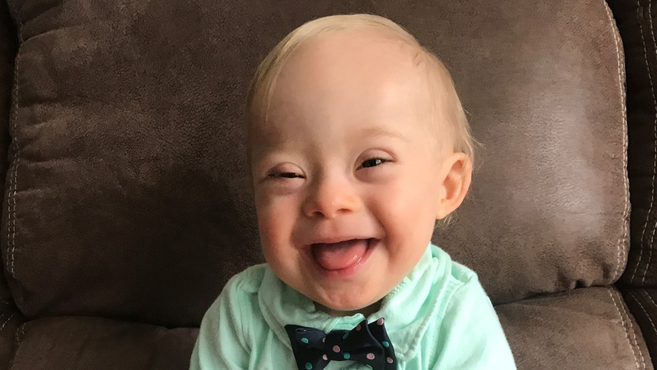 This September 2017 undated photo provided by the Warren family via Gerber shows 14-month-old Lucas Warren of Dalton, Ga. Lucas' contagious smile won over executives at Gerber baby food who have made him their 'spokesbaby' this year. Lucas is Gerber's first spokesbaby with Down syndrome in the company's 91-year history. (Courtesy Warren family/Gerber via AP)'