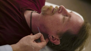 David Ramsey, a Medicaid patient who suffers from chronic pain after falling off a cliff in 2011, receives acupuncture treatment in Warrensville Heights, Ohio on Nov. 13, 2017.(AP Photo/Dake Kang)