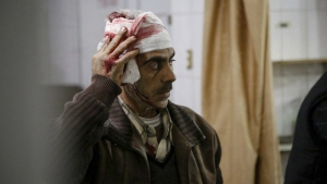 An injured Syrian man who was wounded by the shelling of the Syrian government forces, waits to receive treatment at a makeshift hospital, in Ghouta, suburb of Damascus, Syria is seen on Tuesday Feb. 20, 2018. (Ghouta Media Center)
