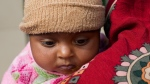 A Pakistani mother waits with her infant to be seen by a doctor at a children ward of Poly Clinic in Islamabad, Pakistan, Tuesday, Feb. 20, 2018. (AP Photo/B.K. Bangash)