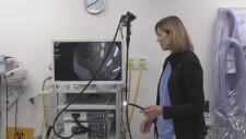 A flexible sigmoidoscopy is used in screening