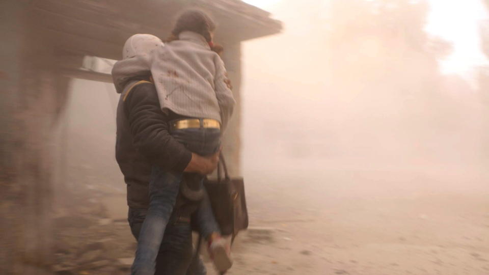 This photo released on Friday, Feb. 23, 2018 by the Syrian Civil Defense group known as the White Helmets, shows a member of the Syrian Civil Defense group carrying a girl who was wounded during airstrikes and shelling by Syrian government forces, in Ghouta, a suburb of Damascus, Syria. (Syrian Civil Defense White Helmets via AP)