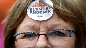 "Shirley Taylor wears a ""Burnt by Phoenix"" sticker on her forehead during a rally against the Phoenix payroll system outside the offices of the Treasury Board of Canada in Ottawa on Wednesday, Feb. 28, 2018. THE CANADIAN PRESS/Justin Tang"