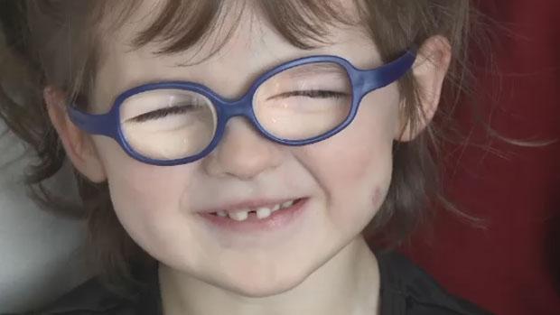Norah Cameron Ranni, 3, has been diagnosed with a rare condition called oculofaciocardiodental syndrome.