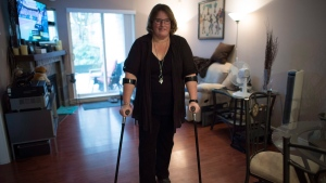 When Jeanine McDonald heard a pop in her low back as she bent down to pick up a lid from a box, she had no idea she'd ruptured a disc and would wait three months for surgery. Then a second disc ruptured and left her in more debilitating chronic pain, the kind that millions of Canadians live with daily. Macdonald poses for a photo at her apartment in Coquitlam, B.C., Wednesday, March, 14, 2018. (THE CANADIAN PRESS/Jonathan Hayward)
