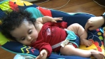 Baby living with severe bone disease