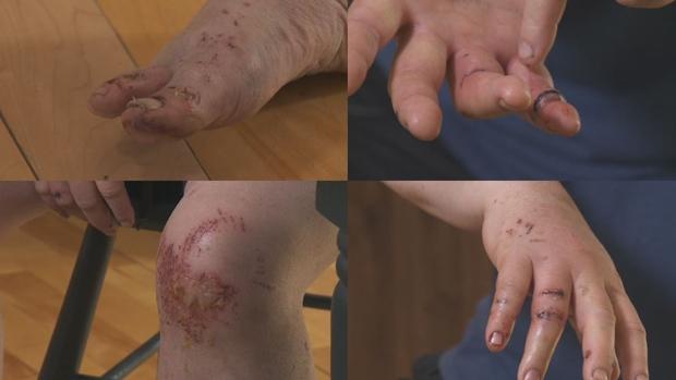 Injuries to Robert Cote