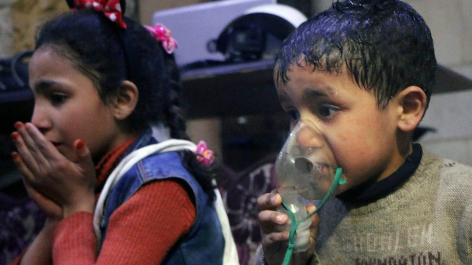 This image released early Sunday, April 8, 2018 by the Syrian Civil Defense White Helmets, shows a child receiving oxygen through respirators following an alleged poison gas attack in the rebel-held town of Douma, near Damascus, Syria.(Syrian Civil Defense White Helmets via AP)