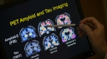 R. Scott Turner, Professor of Neurology and Director of the Memory Disorder Center at Georgetown University Hospital, points to PET scan results that are part of a study on Alzheimer's disease at Georgetown University Hospital in Washington on May 19, 2015. (AP Photo/Evan Vucci)