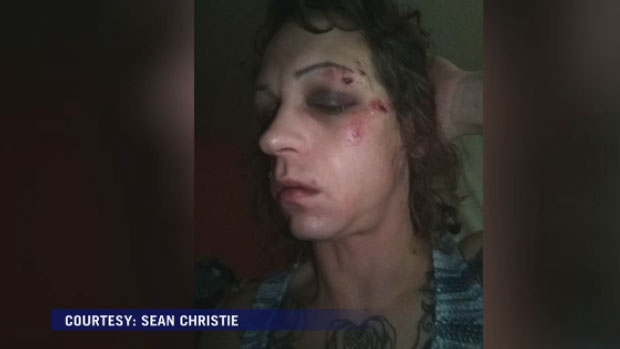Sean Christie says he was jumped and beaten early Sunday morning on Barrington Street in Halifax.