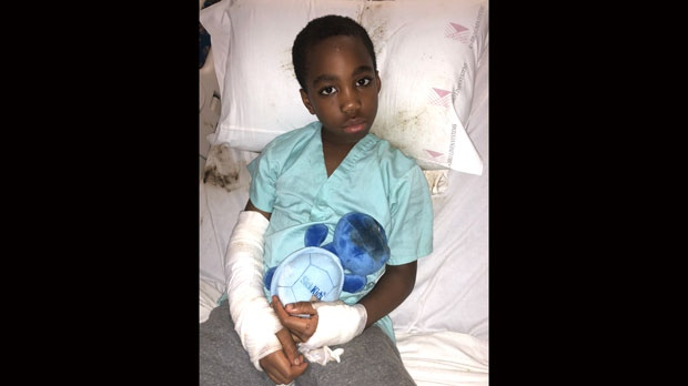 Jeremiah Azeriah, 8, lies in the hospital after hot tar leaked from the roof of his North York school.( Photo provided by family)