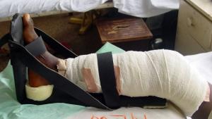 Buruli ulder leg bandage