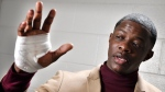 James Shaw Jr., shows his hand that was injured when he disarmed a shooter inside a Waffle House on Sunday, April 22, 2018, in Nashville, Tenn. (Larry McCormack/The Tennessean via AP)