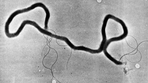 In this May 23, 1944 file photo, the organism treponema pallidum, which causes syphilis, is seen through an electron microscope. (AP Photo, File)