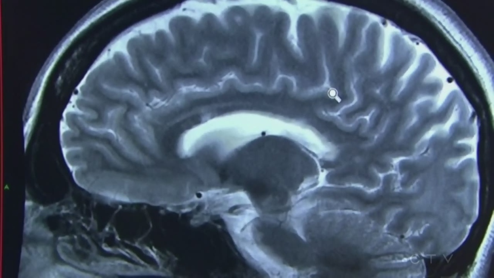 ICU stay can impair patient brain function, study finds