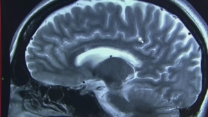 New research suggests that 12 risk factors may be responsible for 40 per cent of dementia cases. (File photo)