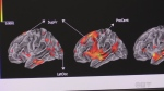 A graphic of a brain and the way it's folded