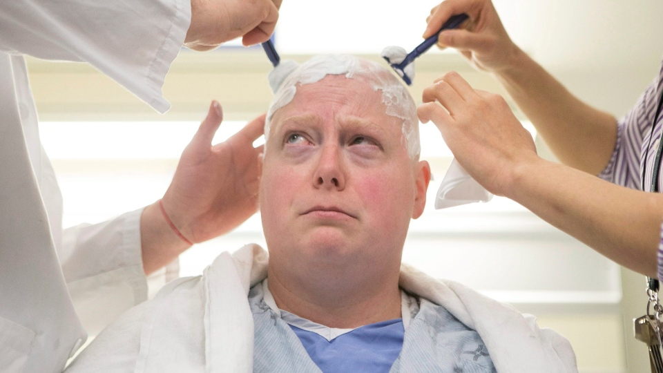 Sky Zazlov has her head shaved before she is fitted with a helmet and placed in a MRI machine for a focused ultrasound procedure, at Toronto's Sunnybrook Hospital on Tuesday, May 1, 2018. The trial is a North American first in the treatment of depression, which uses high frequency ultrasound waves to reach deep part of the brain. THE CANADIAN PRESS/Chris Young