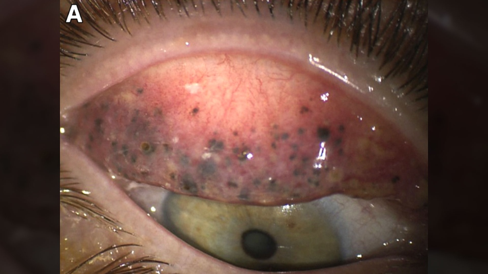 The woman had developed darkly pigmented subconjunctival concretions or tiny black bumps lodged under her lids. (The American Academy of Ophthalmology)