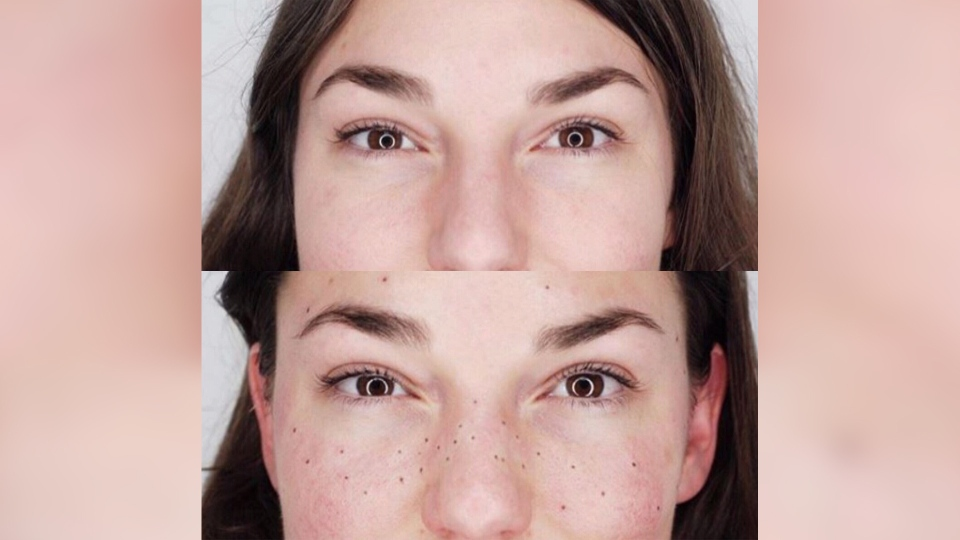 This before and after photo shows the results of a freckle tattoo session.