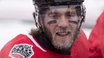 Ice forms on the beard of Ottawa Senators left wing Mike Hoffman during practice on the outdoor rink ahead of the NHL 100 Classic in Ottawa on December 15, 2017. THE CANADIAN PRESS/Adrian Wyld