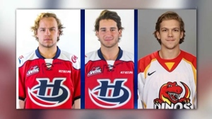 Hockey players injured in campfire explosion show signs of improvement | CTV News