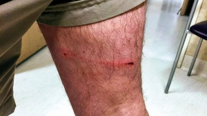 The bite wound is seen in this photo posted to the Mantario Trail Facebook page. (Facebook/Mantario Trail)