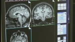 A recent brain scan study at Western could change