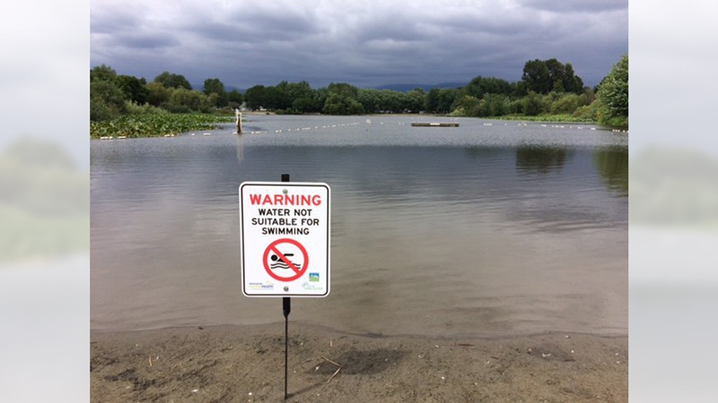 A sign is shown next to Trout Lake in Vancouver on July 19, 2018. (Vancouver Park Board)