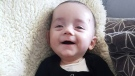 Eight-month-old Leo suffers from epidermolysis bullosa, a rare and painful blistering skin disease. His mother, Crystal Leptich, is calling on the province for more help for his care.