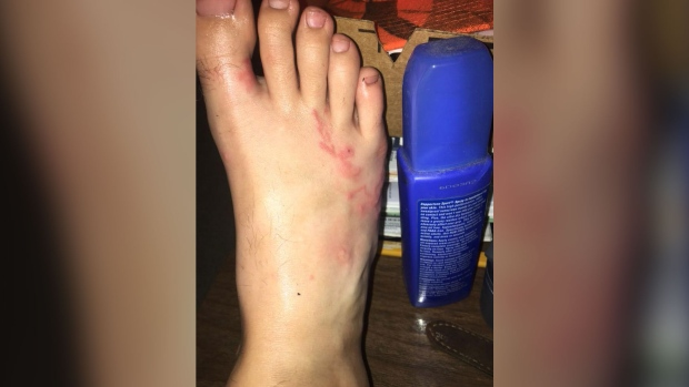 Teen infected with hookworms after walking on Florida beach
