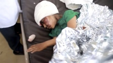 Child in hospital in Saada, Yemen