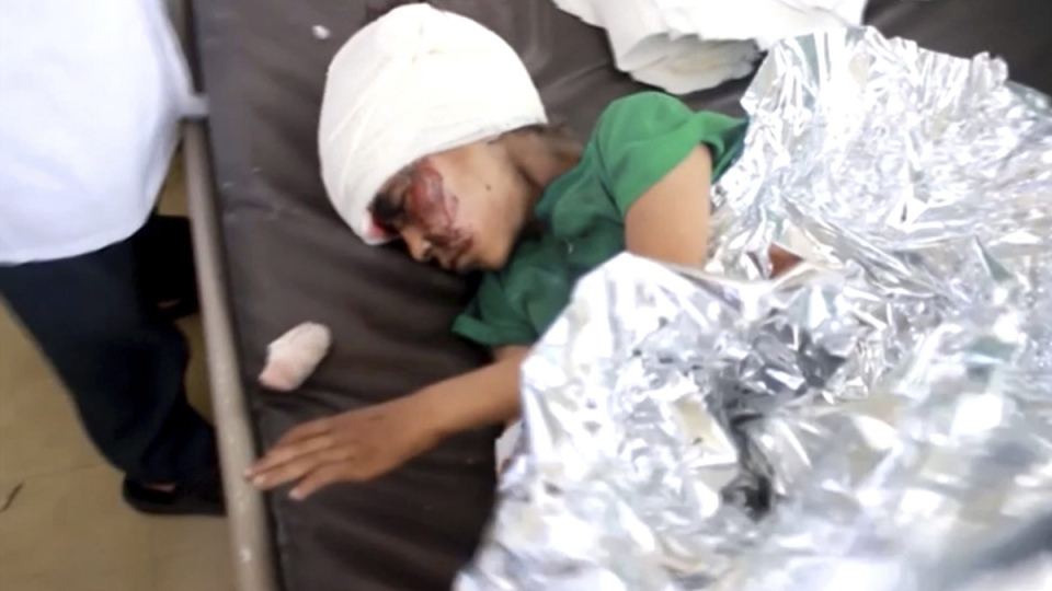 This image made from video taken on Thursday, Aug. 9, 2018, shows a child injured in an airstrike resting at a hospital in Saada, Yemen. (AP Video via AP)