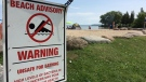 A swimming advisory posted at Innisfil Beach Park North on Aug. 9, 2018 (Don Wright/CTV Barrie)